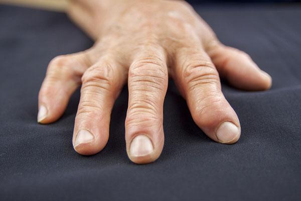 Cape Fear Arthritis Care - Inflammatory Arthritis