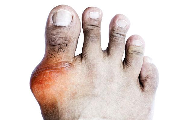 Cape Fear Arthritis Care - Gout